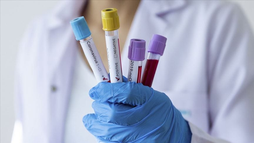 Turkish scientist hopeful of COVID-19 vaccine
